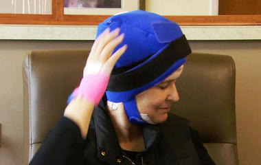 Cold caps help cancer patients keep their hair