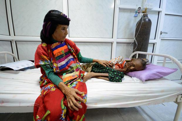 After Hospitals, Schools, Saudi Arabia Kills 60 at Yemen Prison