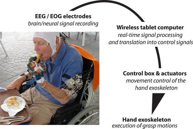 Paralyzed patients exam mind-controlled robotic hand