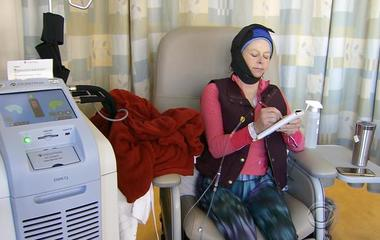 Scalp cooling therapy used to minimize hair loss from chemo