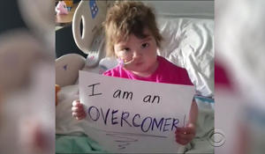 "Pint-sized Calif. girl inspiring millions as an ""Overcomer"""