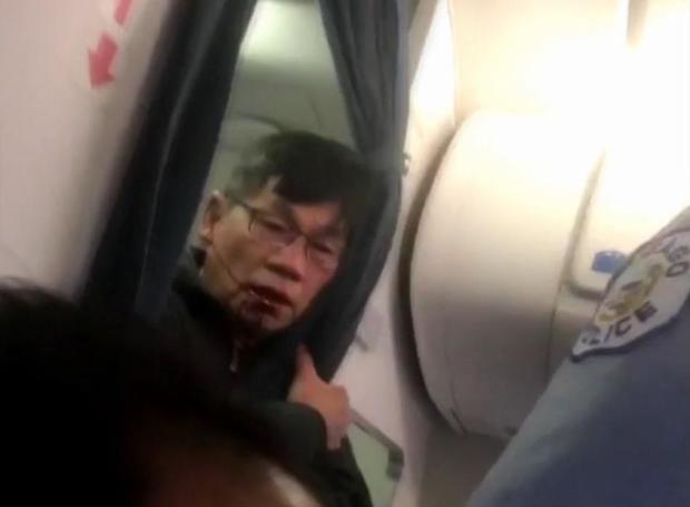 170411  -  Facebook的美国乘客的血性,face.jpg