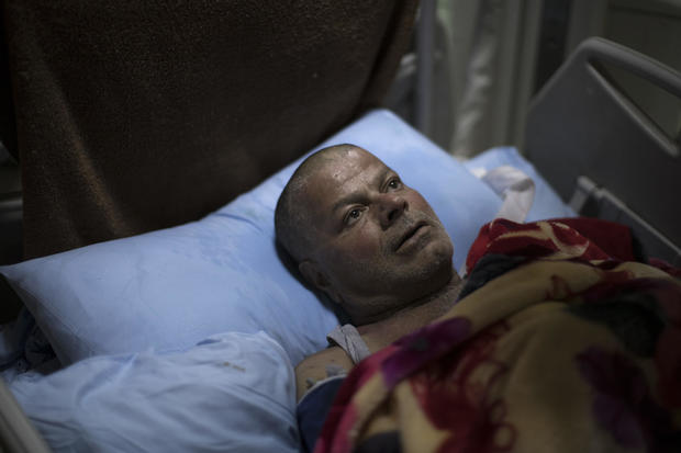 mosul-airstrike-survivor-ap-17100645538423.jpg