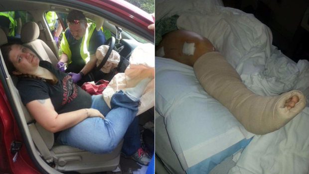 Feet on dash vehicle  crash: 'My whole right side was broken'