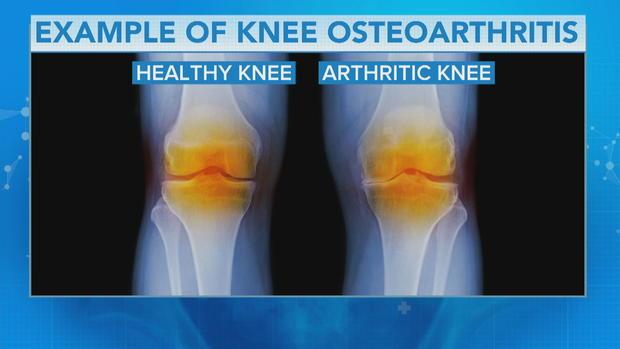 knee-graphic.jpg