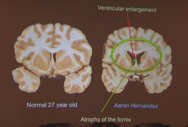 cte-hernandez-brain.jpg