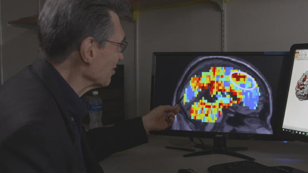 NFA-battiste  - 脑 - 扫描 - 需求 -  GFX-帧1914.jpg