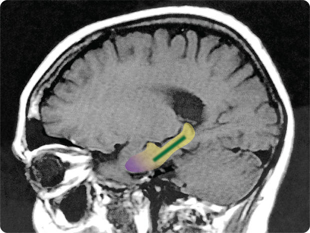 brain-scan-flavonol-study.jpg