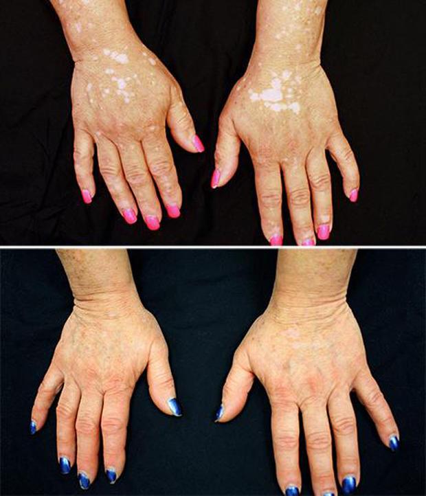 Arthritis Drug Treats Woman S Vitiligo Skin Pigment