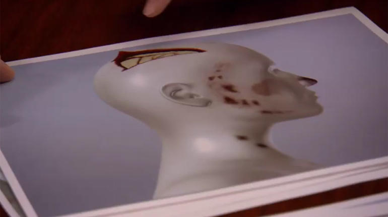 A model of Leslie Neulander's head injuries