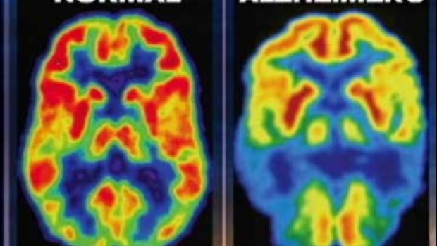 LaPook--'Fingerprint' For Alzheimer's