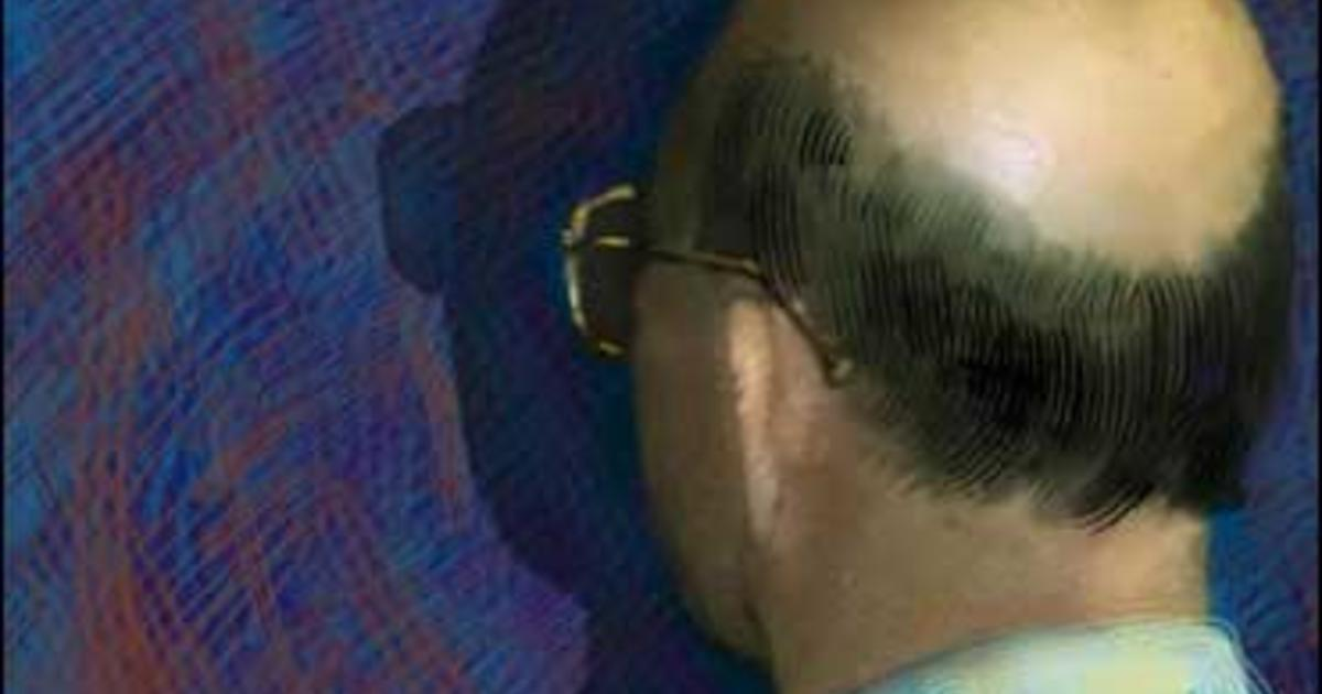Laser Comb, Cloning to Re-grow Hair? - CBS News