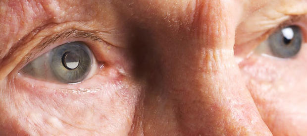 Left eye implanted with Implantable Miniature Telescope. (VisionCare)