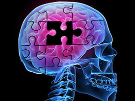 Advances in identifying Alzheimer's has not led to better treatment. (CBS)