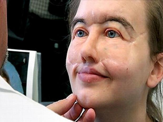 Gunshot survivor Chrissy Steltz receives incredible prosthetic face 11 years after horrific injury.