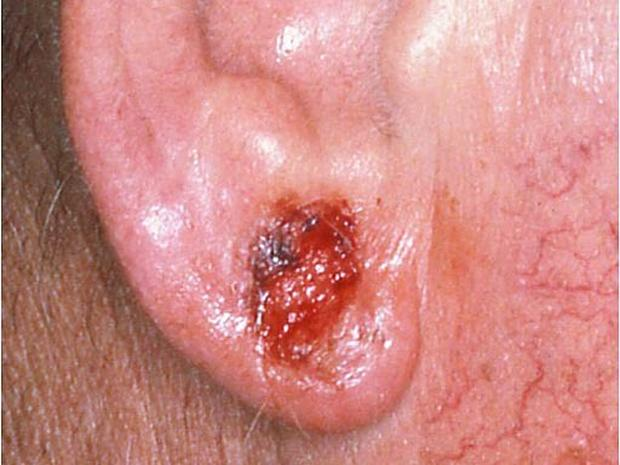 Basal cell carcinoma on the ear - Skin cancer or mole? How