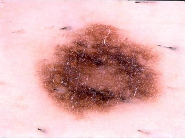 Dysplastic nevus - Skin cancer or mole? How to tell - Pictures - CBS