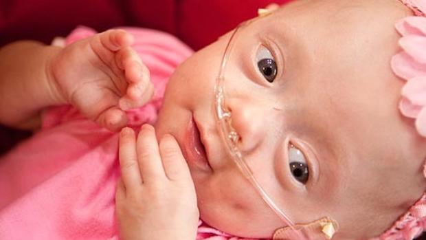 Michelle Duggar's Miracle Baby