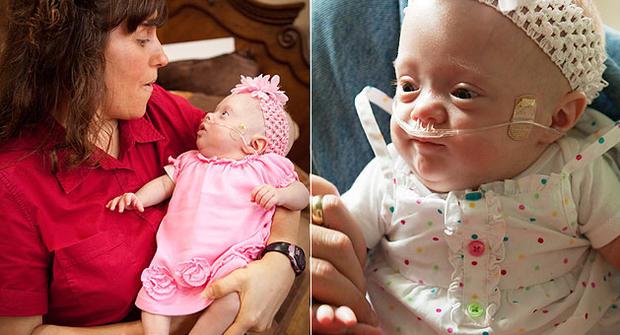 Michelle Duggar and little Josie Brooklyn Duggar, who was born two months prematurely.