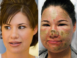 Bethany Storro, Acid Attack Victim, Released From Hospital, Says Attack Wont Stop Her From Living Her Life