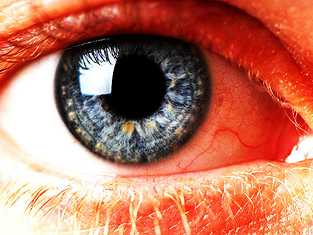 blue-eye-2.jpg