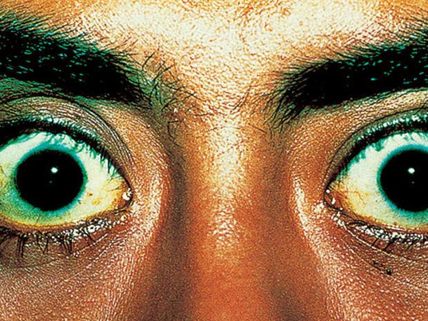 Exophthalmoses-hyperthyroid.jpg