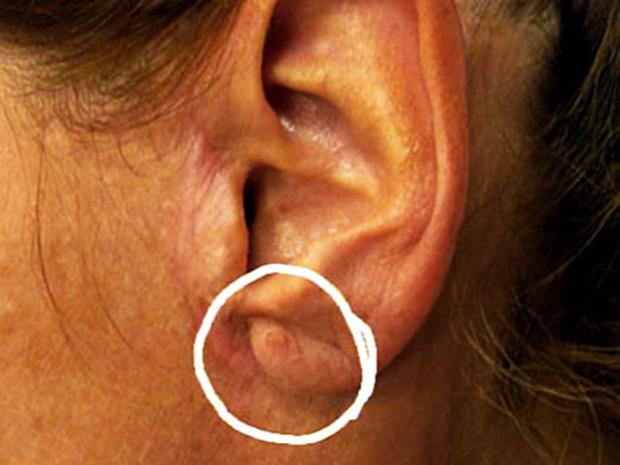 raisin-ear.jpg