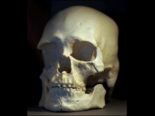 Fla. Couple Buys Real Human Skeleton at Yard Sale for $8