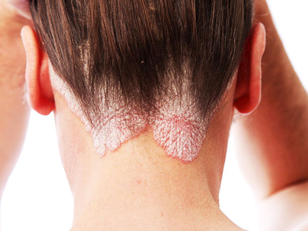 Psoriasis: 6 common myths