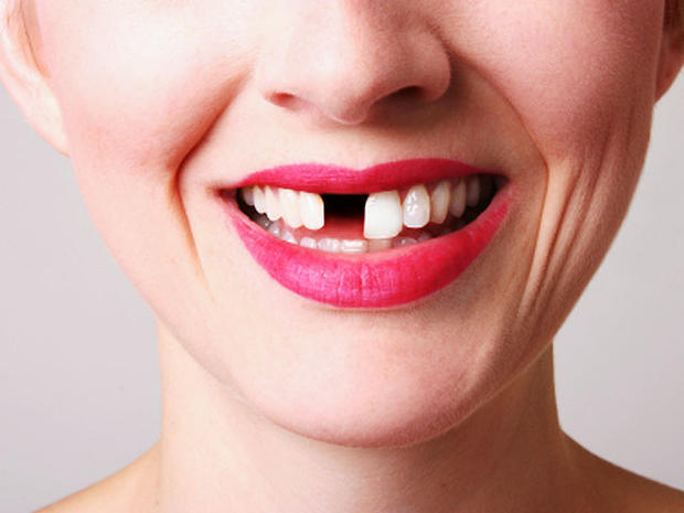 missing-tooth-iStock_000004.jpg