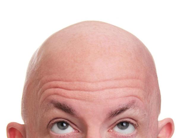 bald-mancut_000005398392XSmall.jpg