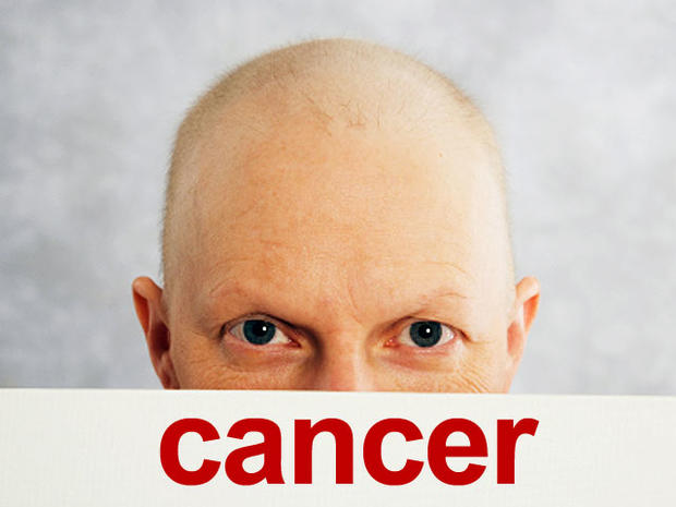 cancer, shaved head, bald, generic, 4x3