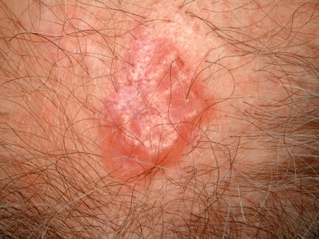Is it skin cancer? 38 photos that could save your life (PICTURES