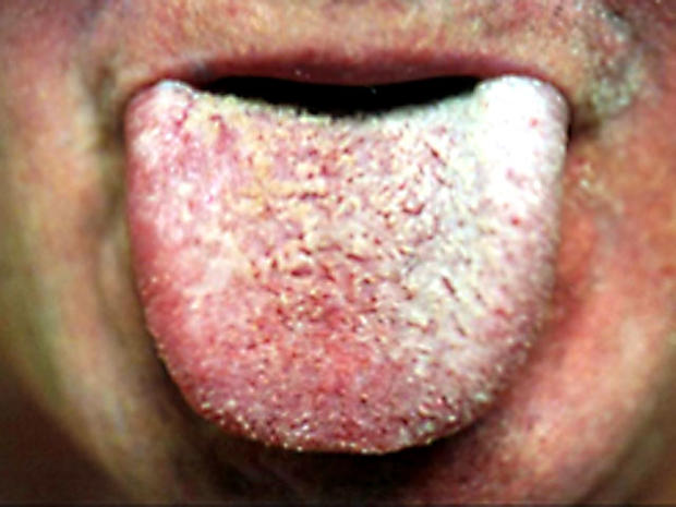 White-coated-tongue.jpg