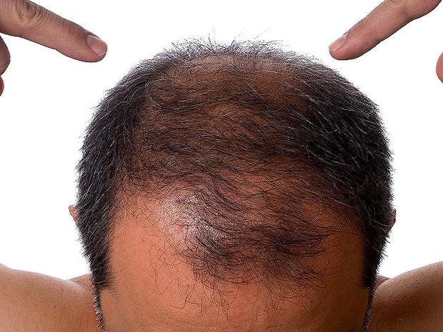 istockphoto_balding_hair_lo.jpg