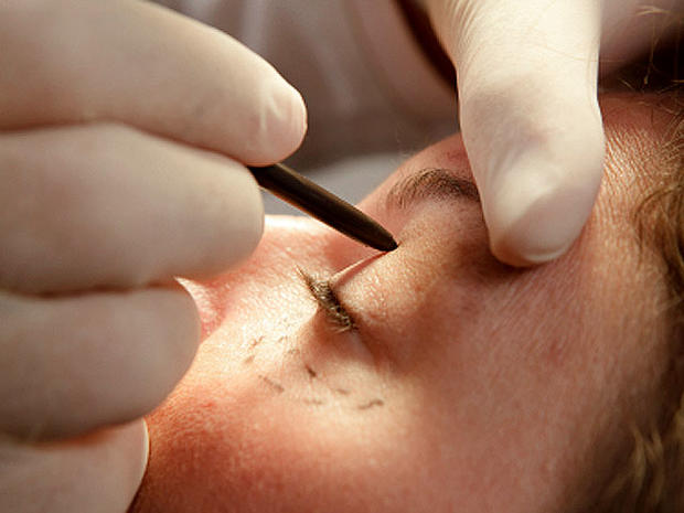 Top 10 most popular cosmetic procedures in U.S.