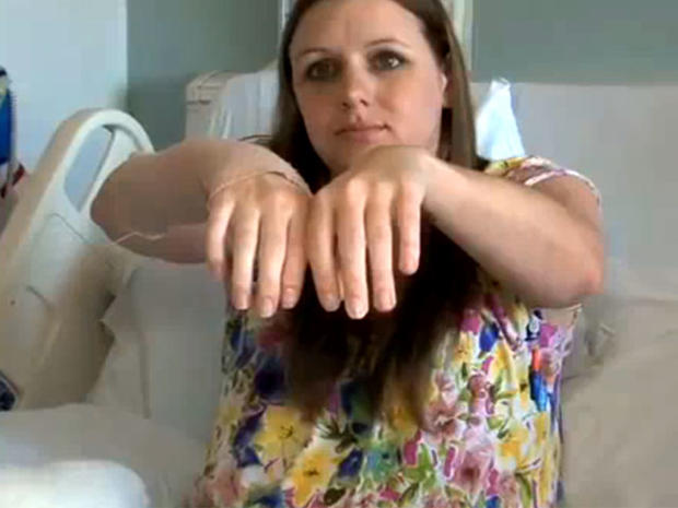Emily Fennell shows off hand transplant