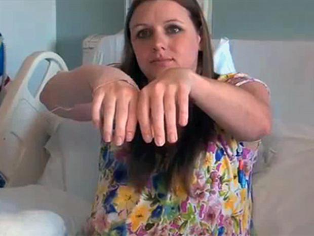 hand_transplant.jpg