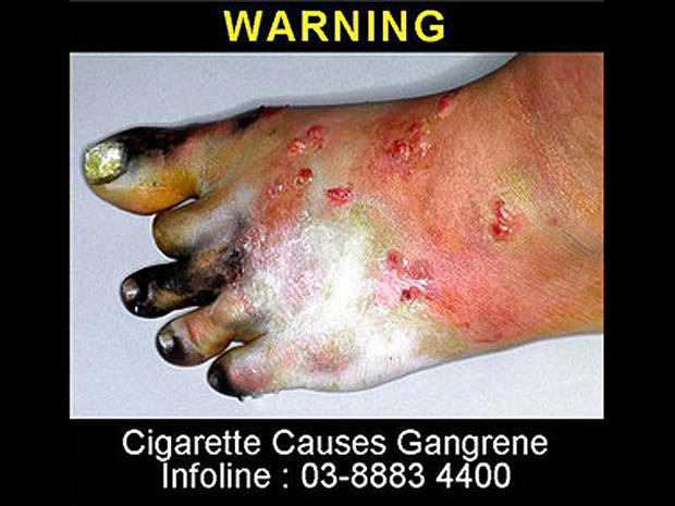 malaysia2-tobaccowarninglabel.jpg