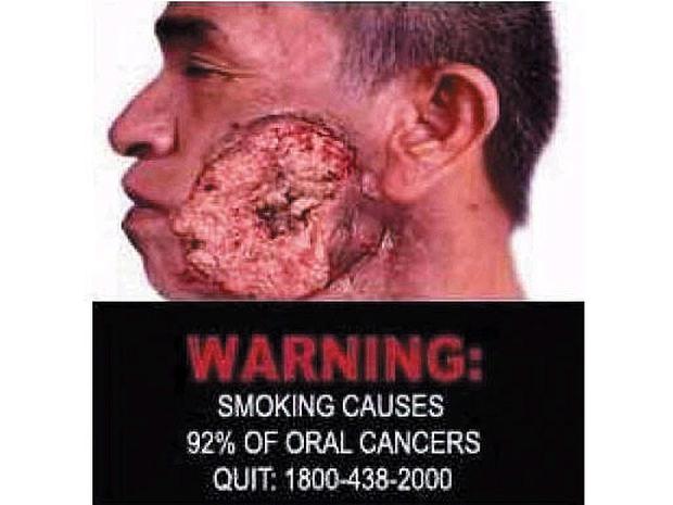 singapore-tobaccowarninglabel.jpg