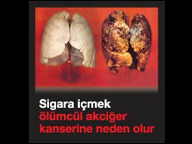 turkey-tobaccowarninglabel.jpg