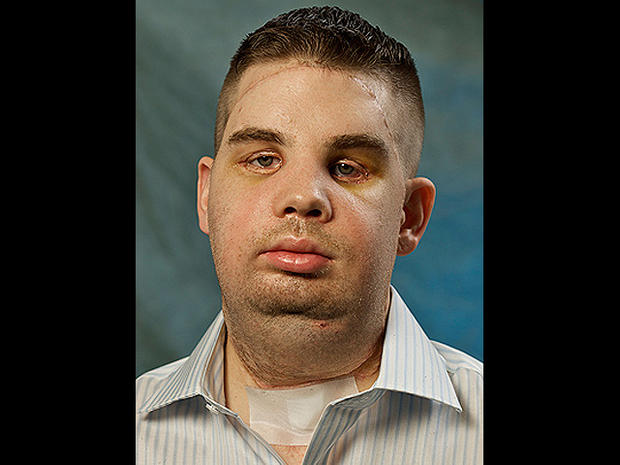 Amazing face transplants (GRAPHIC IMAGES)