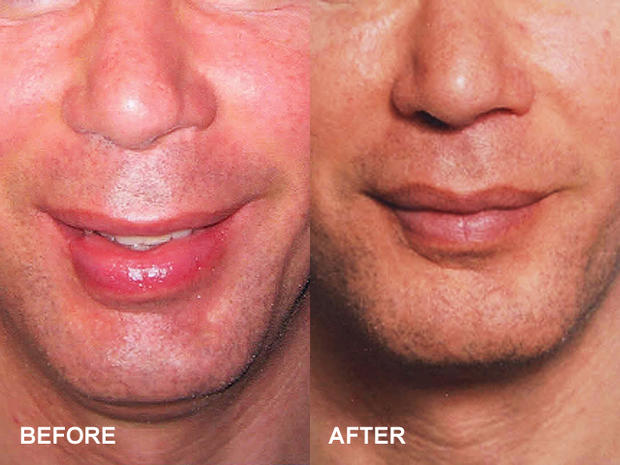 Upper Lip Lift 13 Bizarre But Popular Plastic Surgery