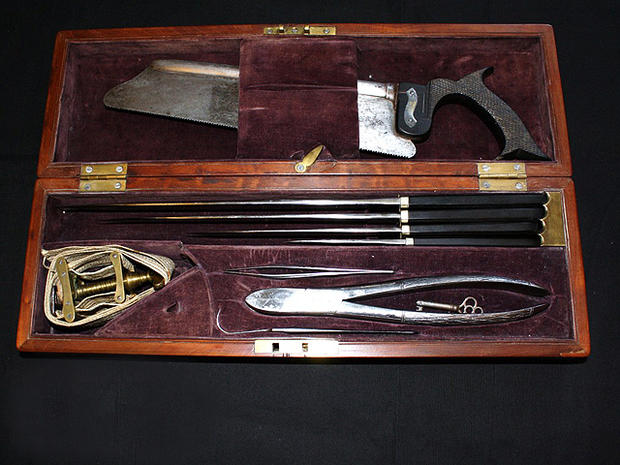 Civil War medicine: 37 pieces of history