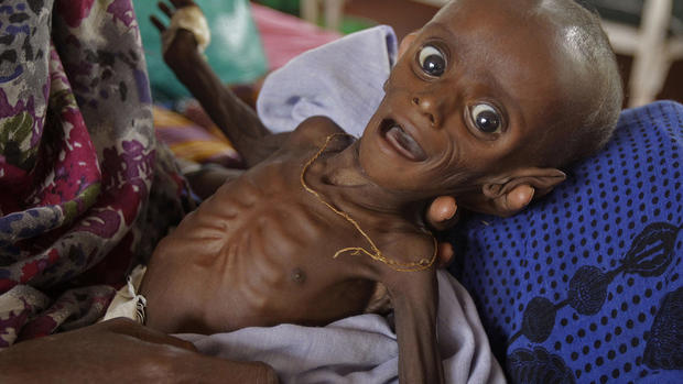 Faces of famine