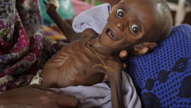 east_africa_famine_AP110726118117.jpg