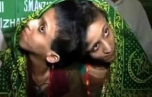 Conjoined twins pray for help