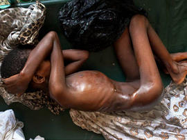 Misery in Somalia