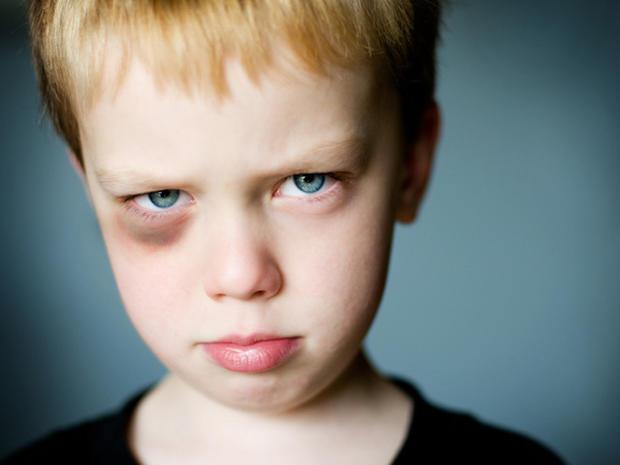 Little boy with a black eye.