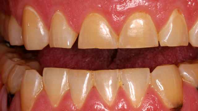 does diet coke ruin your teeth
